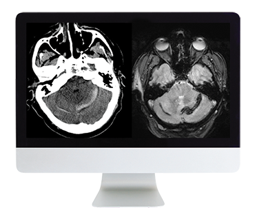 Clinical Neuroradiology Online Course
